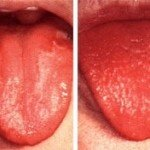Что такое макроглоссия (увеличение языка) ?