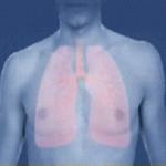Курсовая работа на тему — «Создание школы здоровья профилактики бронхиальной астмы».